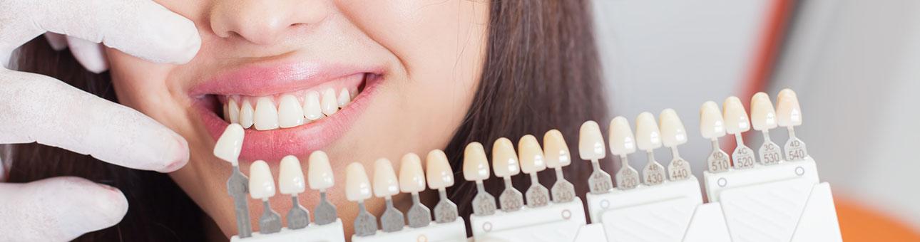 Zahnfarben Zahnfarben